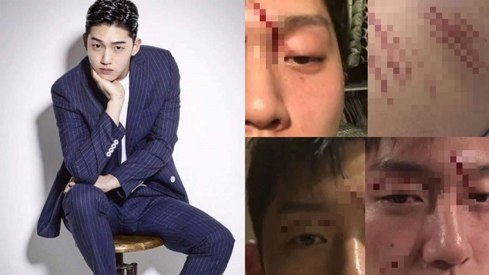 Accused Of Assaulting Goo Haras Ex Boyfriend Revealed Photos Of Him Attacked By The Idol